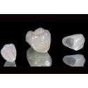 E-Max (Cam Seramik) Porselen